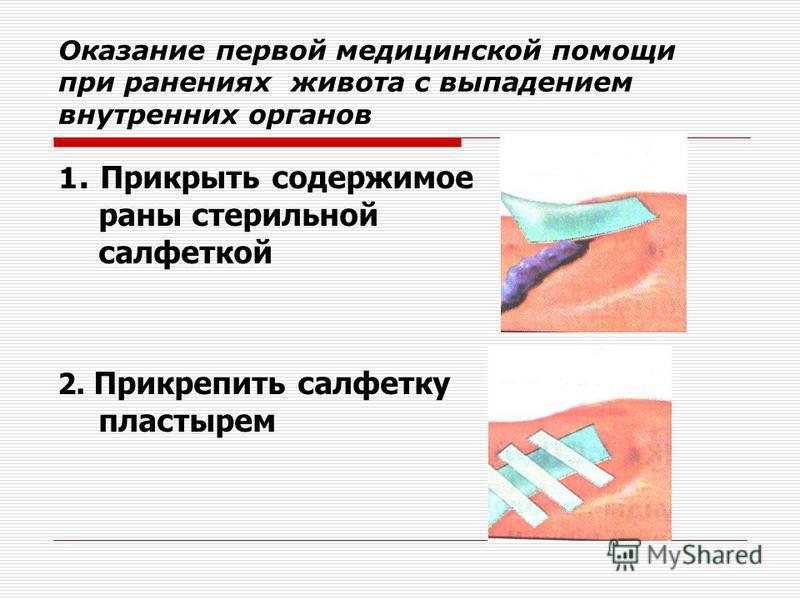 Оказание первой медицинской помощи при ранениях живота с выпадением внутренних органов 1. Прикрыть содержимое раны стерильной салфеткой 2. Прикрепить салфетку пластырем