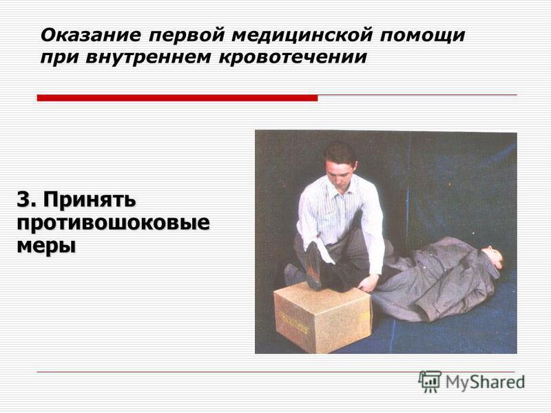 Оказание первой медицинской помощи при внутреннем кровотечении 3. Принять противошоковые меры