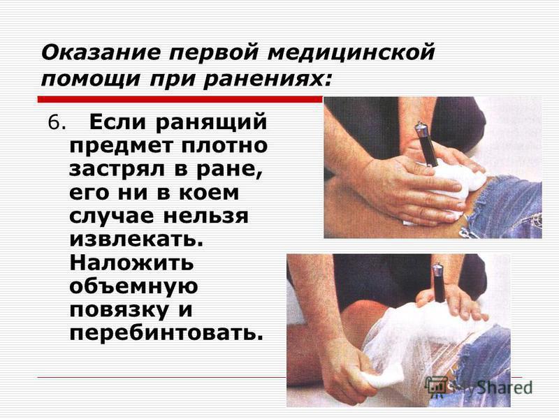 Оказание первой медицинской помощи при ранениях: 6. Если ранящий предмет плотно застрял в ране, его ни в коем случае нельзя извлекать. Наложить объемную повязку и перебинтовать.