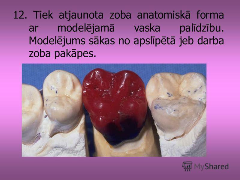 12. Tiek atjaunota zoba anatomiskā forma ar modelējamā vaska palīdzību. Modelējums sākas no apslīpētā jeb darba zoba pakāpes.