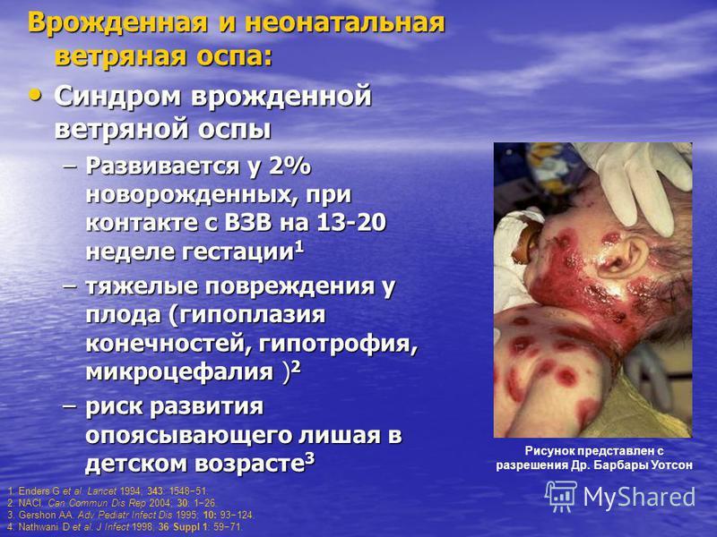 Врожденная и неонатальная ветряная оспа: Синдром врожденной ветряной оспы Синдром врожденной ветряной оспы –Развивается у 2% новорожденных, при контакте с ВЗВ на 13-20 неделе гестации 1 –тяжелые повреждения у плода (гипоплазия конечностей, гипотрофия