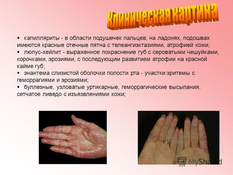 капилляриты - в области подушечек пальцев, на ладонях, подошвах имеются красные отечные пятна с телеангиэктазия ми, атрофией кожи; люпус-хейлит - выраженное покраснение губ с сероватыми чешуйками, корочками, эрозиями, с последующим развитием атрофии