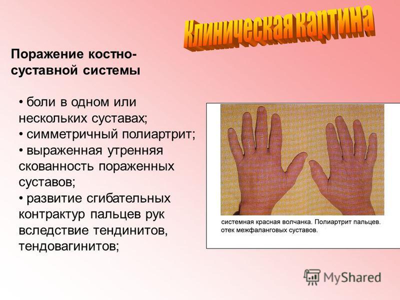 Поражение костно- суставной системы боли в одном или нескольких суставах; симметричный полиартрит; выраженная утренняя скованность пораженных суставов; развитие сгибательных контрактур пальцев рук вследствие тендинитов, тендовагинитов;