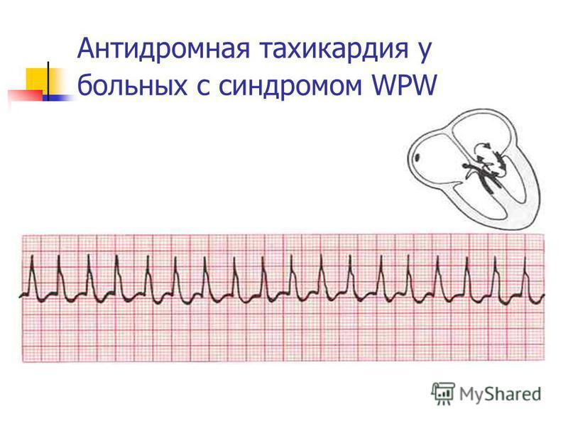 Антидромная тахикардия у больных с синдромом WPW