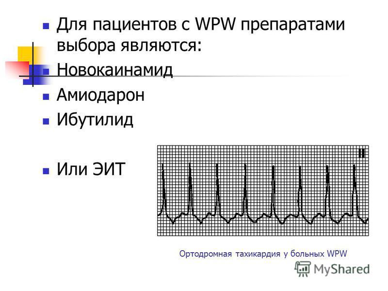 Ортодромная тахикардия у больных WPW Для пациентов с WPW препаратами выбора являются: Новокаинамид Амиодарон Ибутилид Или ЭИТ