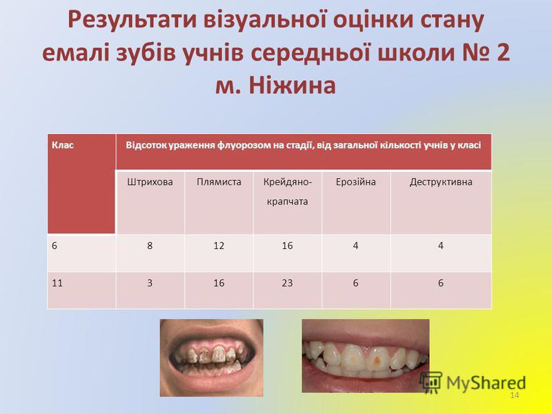 Результати візуальної оцінки стану емалі зубів учнів середньої школи 2 м. Ніжина КласВідсоток ураження флуорозом на стадії, від загальної кількості учнів у класі ШтриховаПлямиста Крейдяно- крапчата ЕрозійнаДеструктивна 68121644 113162366 14