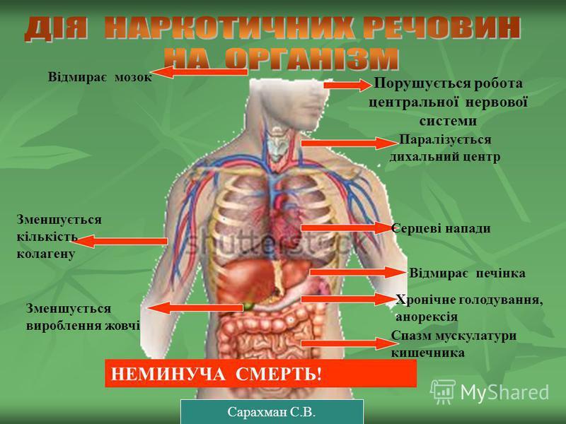 Порушується робота центральної нервової системи Паралізується дихальний центр Серцеві напади Відмирає печінка Хронічне голодування, анорексія Спазм мускулатури кишечника Відмирає мозок Зменшується вироблення жовчі Зменшується кількість колагену НЕМИН