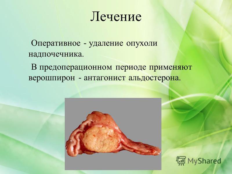 Лечение Оперативное - удаление опухоли надпочечника. В предоперационном периоде применяют верошпирон - антагонист альдостерона.