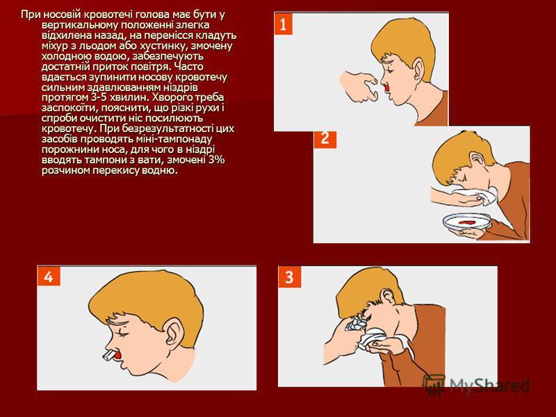 При носовій кровотечі голова має бути у вертикальному положенні злегка відхилена назад, на перенісся кладуть міхур з льодом або хустинку, змочену холодною водою, забезпечують достатній приток повітря. Часто вдається зупинити носову кровотечу сильним