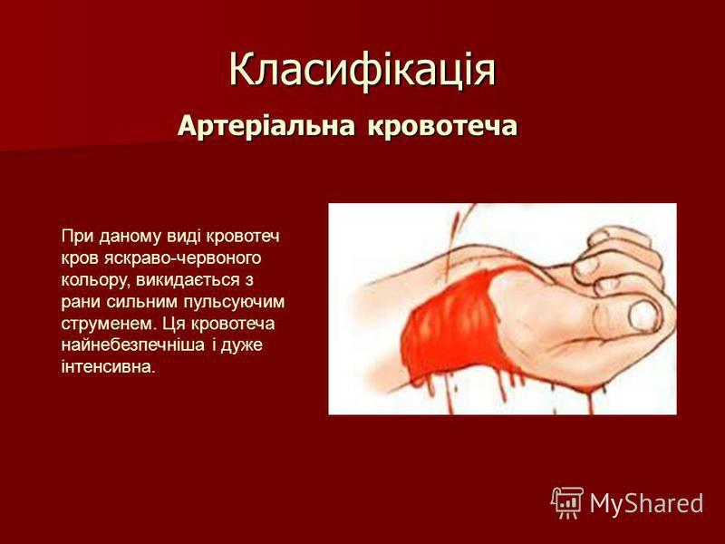Класифікація Артеріальна кровотеча Артеріальна кровотеча При даному виді кровотеч кров яскраво-червоного кольору, викидається з рани сильним пульсуючим струменем. Ця кровотеча найнебезпечніша і дуже інтенсивна.