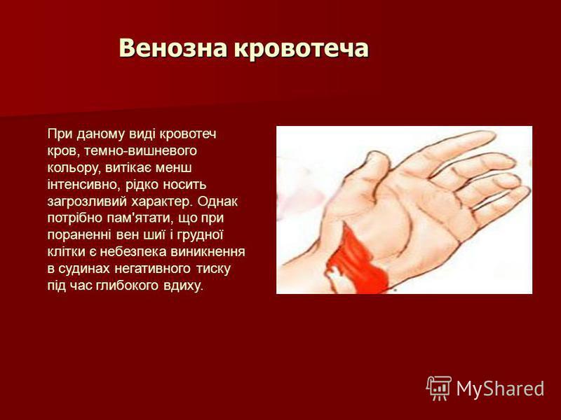 Венозна кровотеча При даному виді кровотеч кров, темно-вишневого кольору, витікає менш інтенсивно, рідко носить загрозливий характер. Однак потрібно пам'ятати, що при пораненні вен шиї і грудної клітки є небезпека виникнення в судинах негативного тис