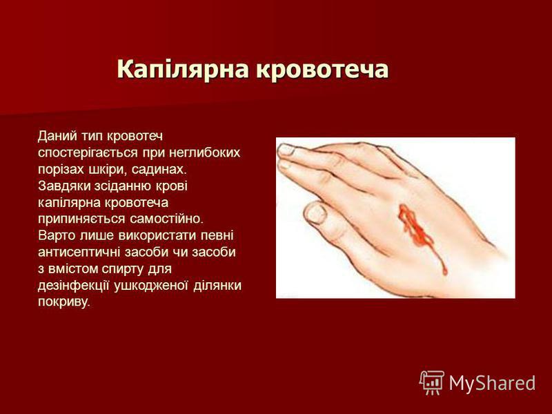Капілярна кровотеча Даний тип кровотеч спостерігається при неглибоких порізах шкіри, садинах. Завдяки зсіданню крові капілярна кровотеча припиняється самостійно. Варто лише використати певні антисептичні засоби чи засоби з вмістом спирту для дезінфек