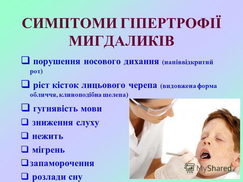 СИМПТОМИ ГІПЕРТРОФІЇ МИГДАЛИКІВ порушення носового дихання (напіввідкритий рот) ріст кісток лицьового черепа (видовжена форма обличчя, клиноподібна щелепа) гугнявість мови зниження слуху нежить мігрень запаморочення розлади сну