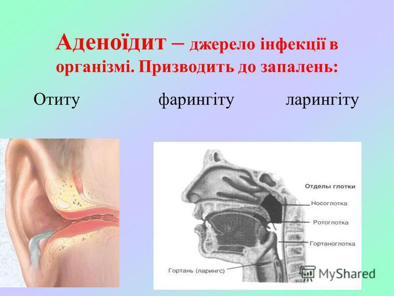 Аденоїдит – джерело інфекції в організмі. Призводить до запалень: Отиту фарингіту ларингіту