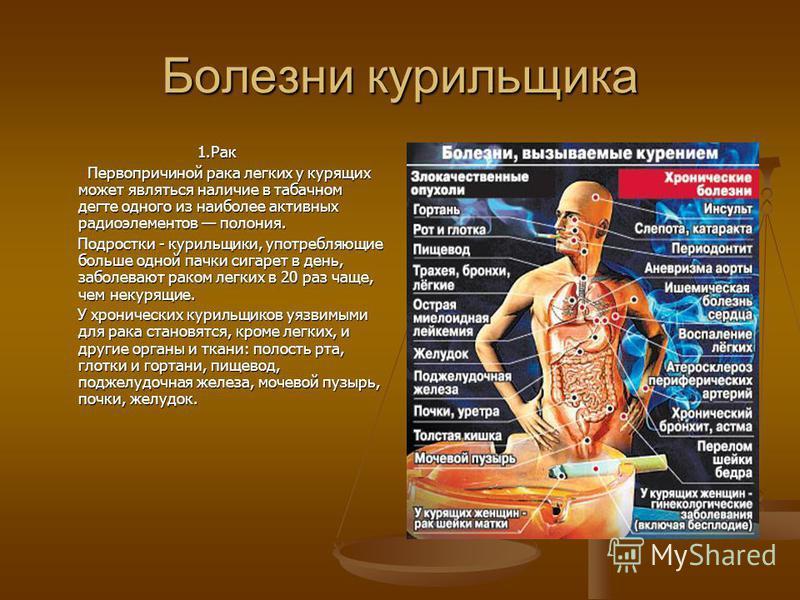 Болезни курильщика 1. Рак Первопричиной рака легких у курящих может являться наличие в табачном дегте одного из наиболее активных радиоэлементов полония. Первопричиной рака легких у курящих может являться наличие в табачном дегте одного из наиболее а