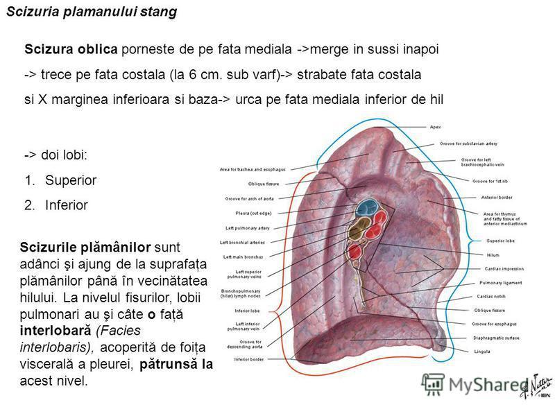 Scizuria plamanului stang Scizura oblica porneste de pe fata mediala ->merge in sussi inapoi -> trece pe fata costala (la 6 cm. sub varf)-> strabate fata costala si X marginea inferioara si baza-> urca pe fata mediala inferior de hil -> doi lobi: 1.S