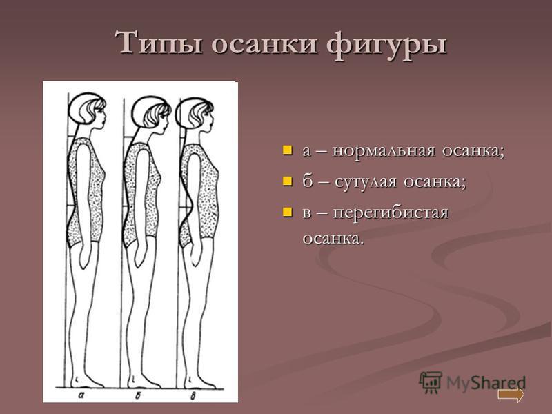 Типы осанки фигуры а – нормальная осанка; б – сутулая осанка; в – перегибистая осанка.