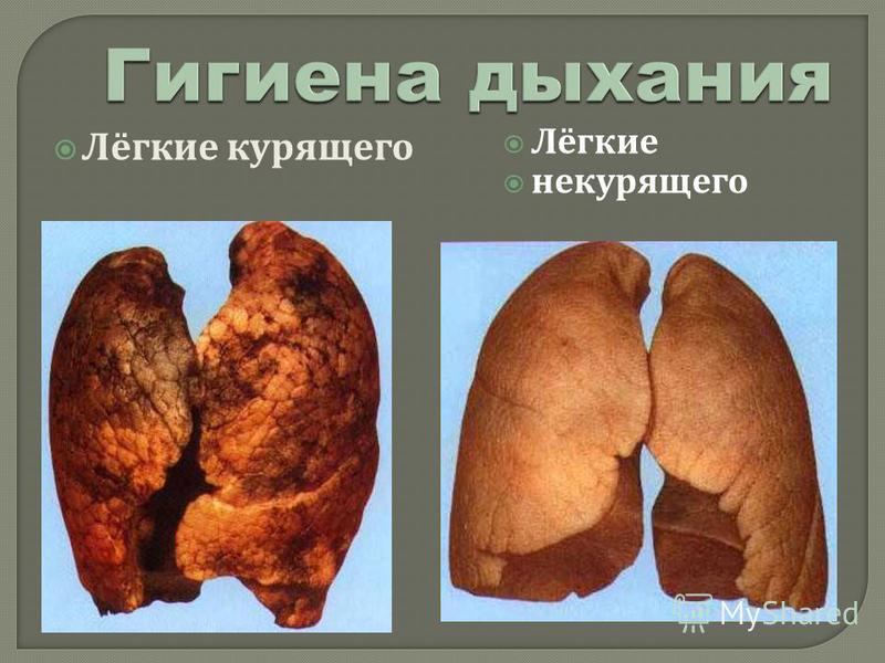 Лёгкие курящего Лёгкие некурящего