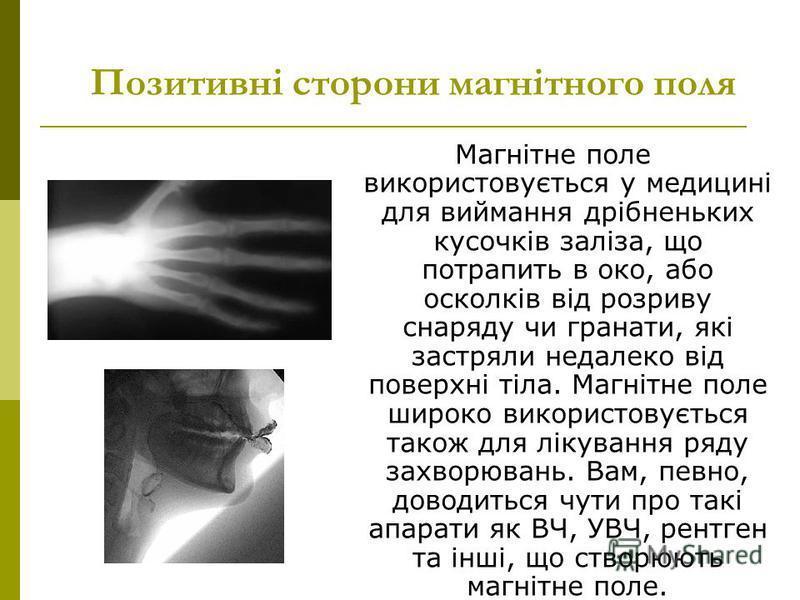 Позитивні сторони магнітного поля Магнітне поле використовується у медицині для виймання дрібненьких кусочків заліза, що потрапить в око, або осколків від розриву снаряду чи гранати, які застряли недалеко від поверхні тіла. Магнітне поле широко викор