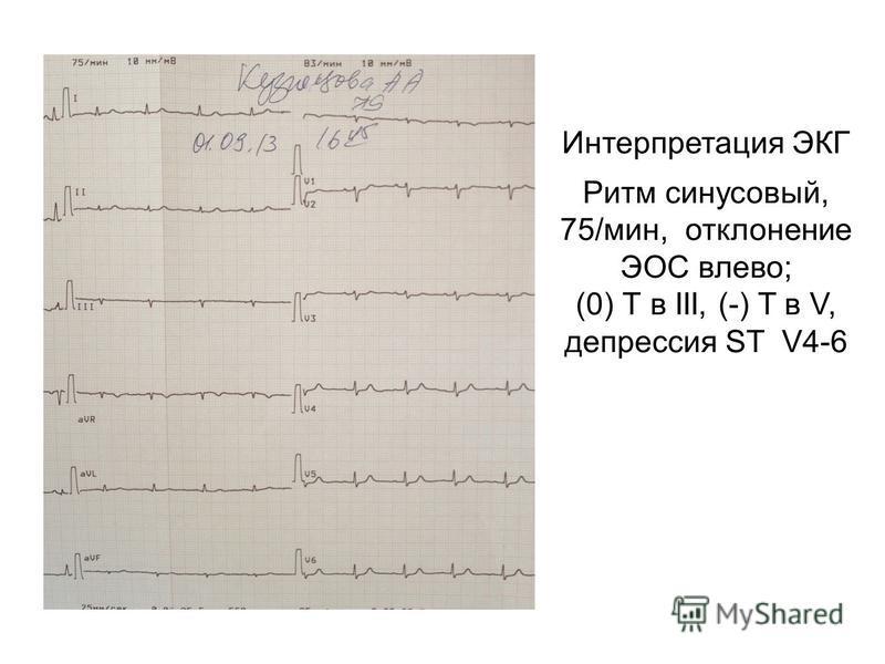 Интерпретация ЭКГ Ритм синусовый, 75/мин, отклонение ЭОС влево; (0) Т в III, (-) T в V, депрессия ST V4-6
