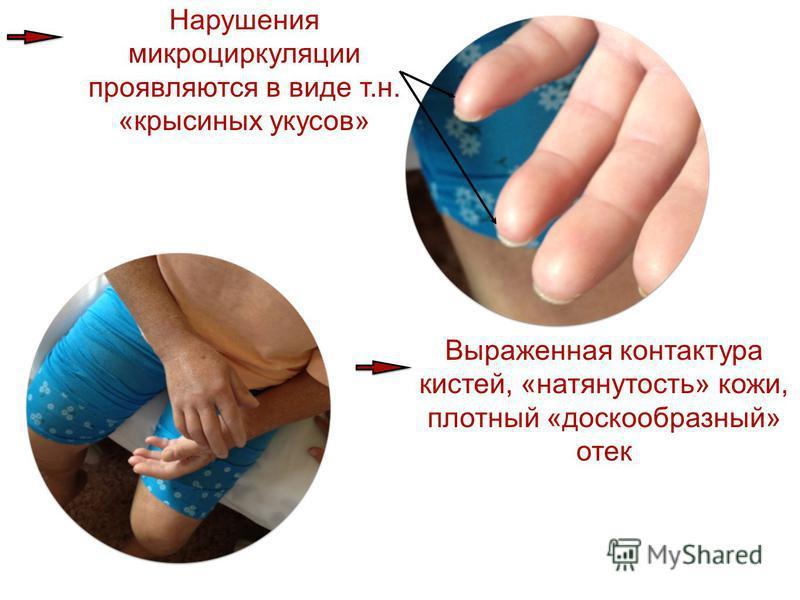 Нарушения микроциркуляции проявляются в виде т.н. «крысиных укусов» Выраженная контактора кистей, «натянутость» кожи, плотный «доскообразный» отек