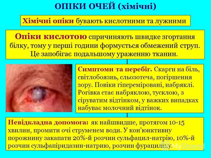 Хімічні опіки бувають кислотними та лужними Опіки кислотою спричиняють швидке згортання білку, тому у перші години формується обмежений струп. Це запобігає подальшому ураженню тканин. Симптоми та перебіг. Скарги на біль, світлобоязнь, сльозотеча, пог