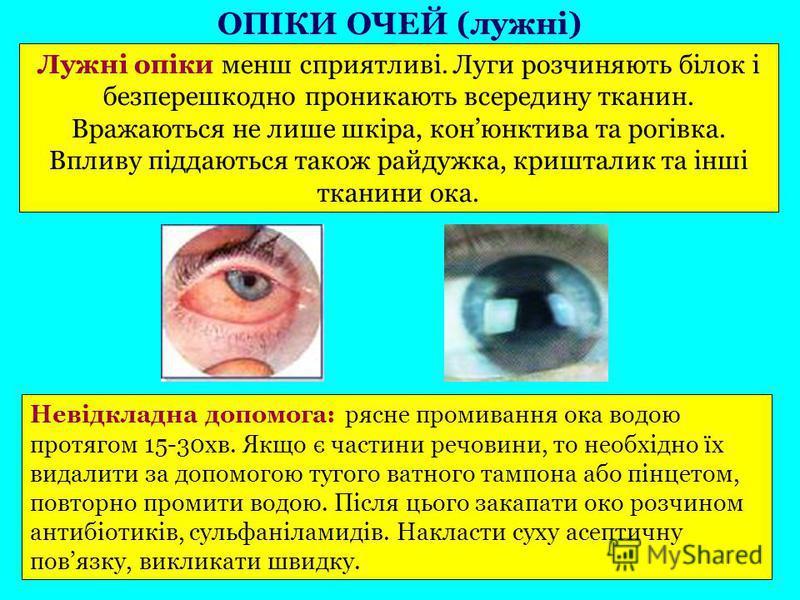Лужні опіки менш сприятливі. Луги розчиняють білок і безперешкодно проникають всередину тканин. Вражаються не лише шкіра, конюнктива та рогівка. Впливу піддаються також райдужка, кришталик та інші тканини ока. Невідкладна допомога: рясне промивання о