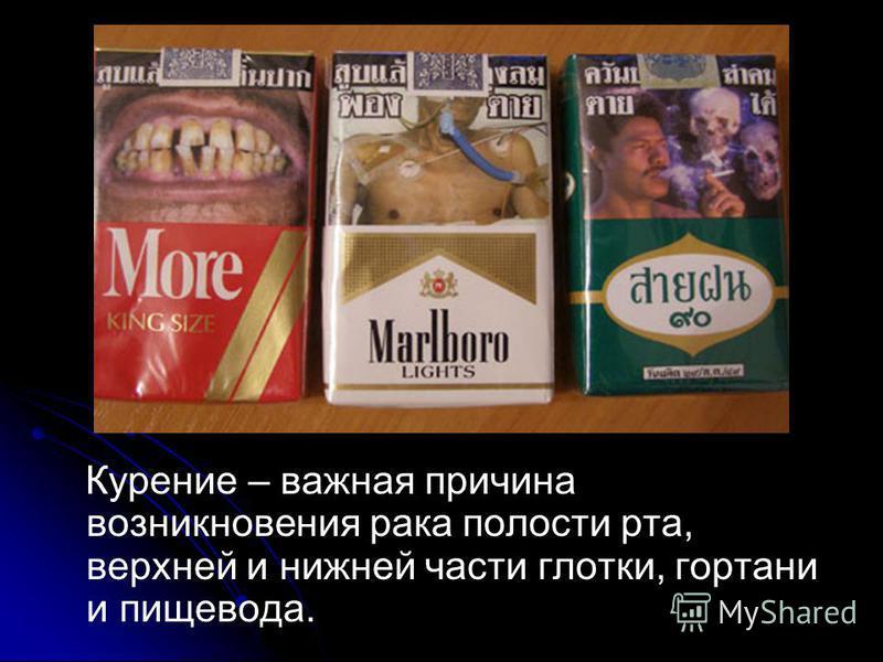 Курение – важная причина возникновения рака полости рта, верхней и нижней части глотки, гортани и пищевода.