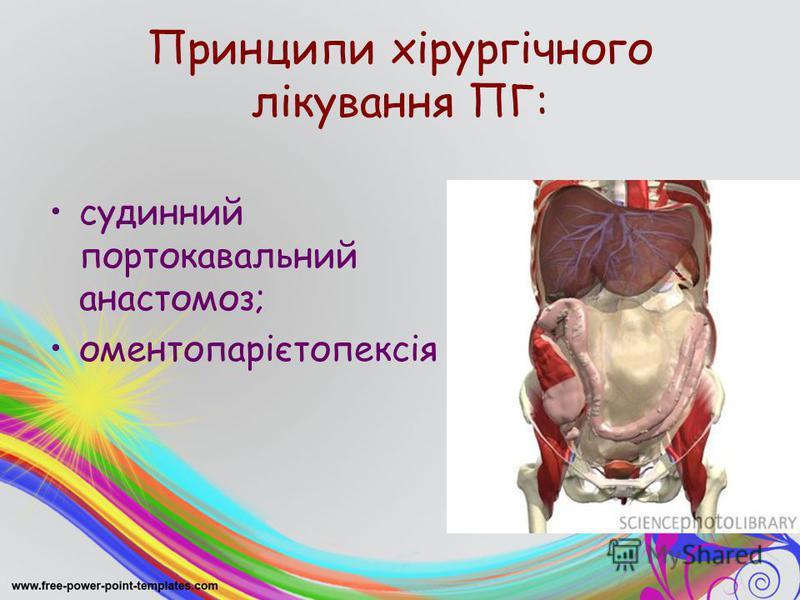Принципи хірургічного лікування ПГ: судинний портокавальний анастомоз; оментопарієтопексія