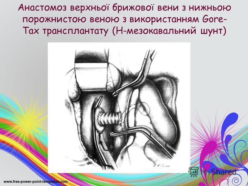 Анастомоз верхньої брижової вени з нижньою порожнистою веною з використанням Gore- Tax трансплантату (Н-мезокавальний шунт)