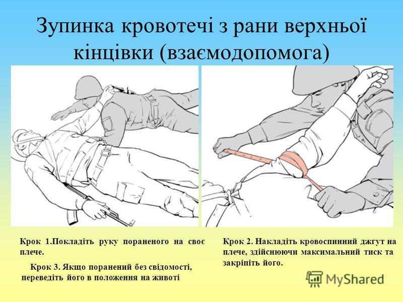 Зупинка кровотечі з рани верхньої кінцівки (взаємодопомога) Крок 1.Покладіть руку пораненого на своє плече. Крок 2. Накладіть кровоспинний джгут на плече, здійснюючи максимальний тиск та закріпіть його. Крок 3. Якщо поранений без свідомості, переведі