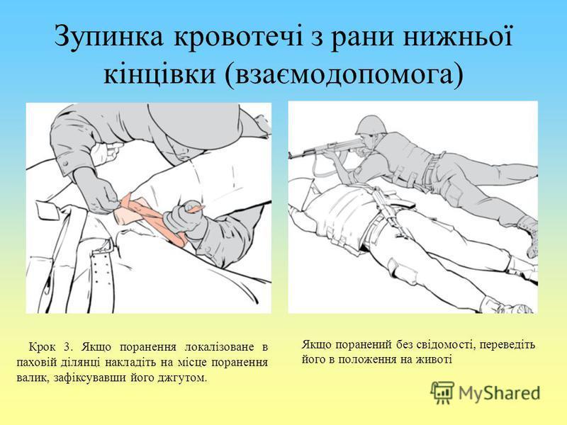 Зупинка кровотечі з рани нижньої кінцівки (взаємодопомога) Крок 3. Якщо поранення локалізоване в паховій ділянці накладіть на місце поранення валик, зафіксувавши його джгутом. Якщо поранений без свідомості, переведіть його в положення на животі