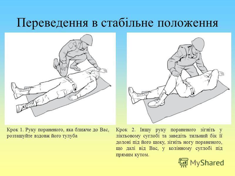 Переведення в стабільне положення Крок 1. Руку пораненого, яка ближче до Вас, розташуйте вздовж його тулуба Крок 2. Іншу руку пораненого зігніть у ліктьовому суглобі та заведіть тильний бік її долоні під його щоку, зігніть ногу пораненого, що далі ві