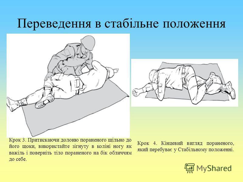 Переведення в стабільне положення Крок 3. Притискаючи долоню пораненого щільно до його щоки, використайте зігнуту в коліні ногу як важіль і поверніть тіло пораненого на бік обличчям до себе. Крок 4. Кінцевий вигляд пораненого, який перебуває у Стабіл