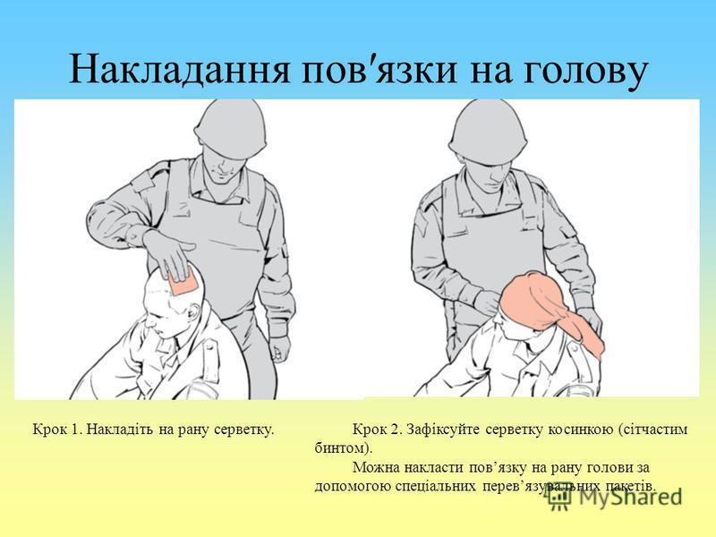 Накладання повязки на голову Крок 1. Накладіть на рану серветку. Крок 2. Зафіксуйте серветку косинкою (сітчастим бинтом). Можна накласти повязку на рану голови за допомогою спеціальних перевязувальних пакетів.