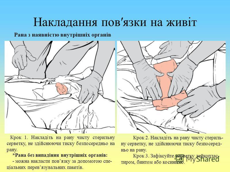 Накладання повязки на живіт Рана з наявністю внутрішніх органів Крок 1. Накладіть на рану чисту стерильну серветку, не здійснюючи тиску безпосередньо на рану. *Рана без випадіння внутрішніх органів: - можна накласти повязку за допомогою спе- ціальних