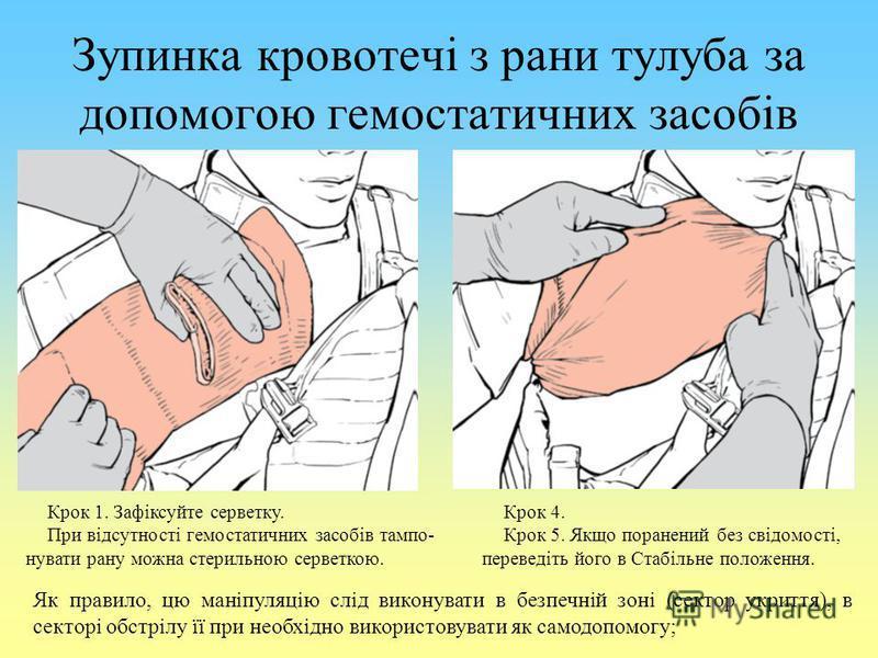 Зупинка кровотечі з рани тулуба за допомогою гемостатичних засобів Крок 1. Зафіксуйте серветку. При відсутності гемостатичних засобів тампо- нувати рану можна стерильною серветкою. Крок 4. Крок 5. Якщо поранений без свідомості, переведіть його в Стаб