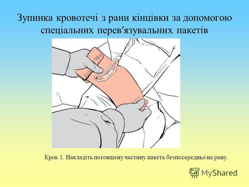 Зупинка кровотечі з рани кінцівки за допомогою спеціальних перевязувальних пакетів Крок 1. Накладіть потовщену частину пакета безпосередньо на рану.