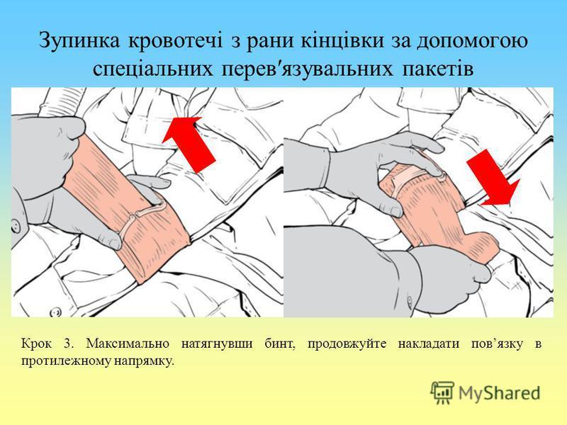 Зупинка кровотечі з рани кінцівки за допомогою спеціальних перевязувальних пакетів Крок 3. Максимально натягнувши бинт, продовжуйте накладати повязку в протилежному напрямку.