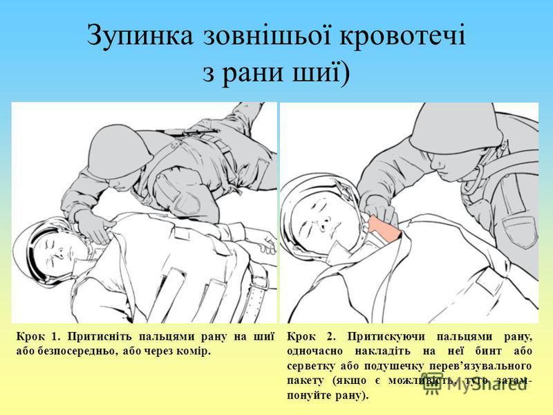 Зупинка зовнішьої кровотечі з рани шиї) Крок 1. Притисніть пальцями рану на шиї або безпосередньо, або через комір. Крок 2. Притискуючи пальцями рану, одночасно накладіть на неї бинт або серветку або подушечку перевязувального пакету (якщо є можливіс