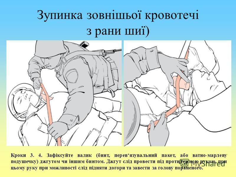 Зупинка зовнішьої кровотечі з рани шиї) Кроки 3. 4. Зафіксуйте валик (бинт, перевязувальний пакет, або ватно-марлеву подушечку) джгутом чи іншим бинтом. Джгут слід провести під протилежною рукою, при цьому руку при можливості слід підняти догори та з