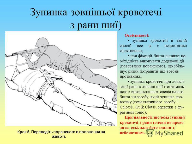 Зупинка зовнішьої кровотечі з рани шиї) Крок 5. Переведіть пораненого в положення на животі. Особливості: зупинка кровотечі в такий спосіб все ж є недостатньо ефективною; при фіксації бинта виникає не- обхідність виконувати додаткові дії (повертання