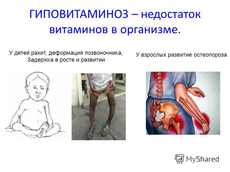 ГИПОВИТАМИНОЗ – недостаток витаминов в организме. У детей рахит, деформация позвоночника, Задержка в росте и развитии У взрослых развитие остеопороза