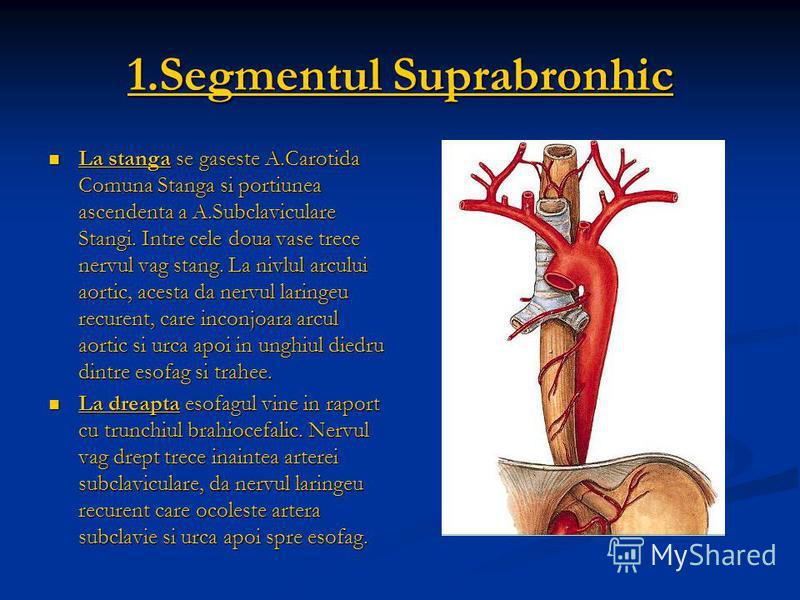 1.Segmentul Suprabronhic La stanga se gaseste A.Carotida Comuna Stanga si portiunea ascendenta a A.Subclaviculare Stangi. Intre cele doua vase trece nervul vag stang. La nivlul arcului aortic, acesta da nervul laringeu recurent, care inconjoara arcul