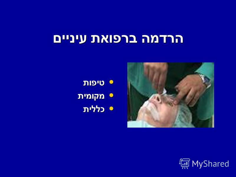 הרדמה ברפואת עיניים טיפות טיפות מקומית מקומית כללית כללית