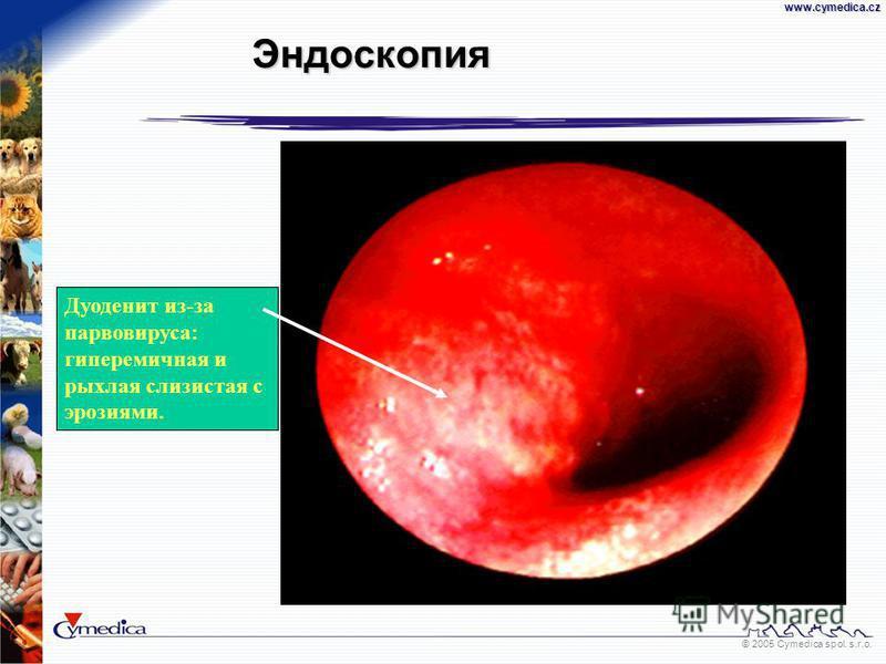 © 2005 Cymedica spol. s.r.o.www.cymedica.cz Дуоденит из-за парвовируса: гиперемичная и рыхлая слизистая с эрозиями. Эндоскопия