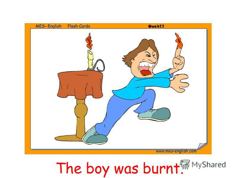 The boy was burnt.