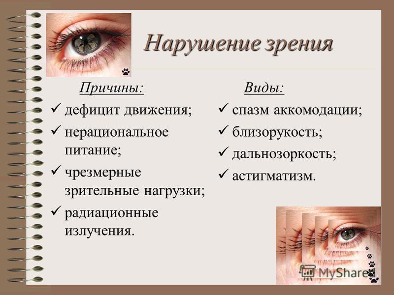 Нарушение зрения Причины: дефицит движения; нерациональное питание; чрезмерные зрительные нагрузки; радиационные излучения. Виды: спазм аккомодации; близорукость; дальнозоркость; астигматизм.