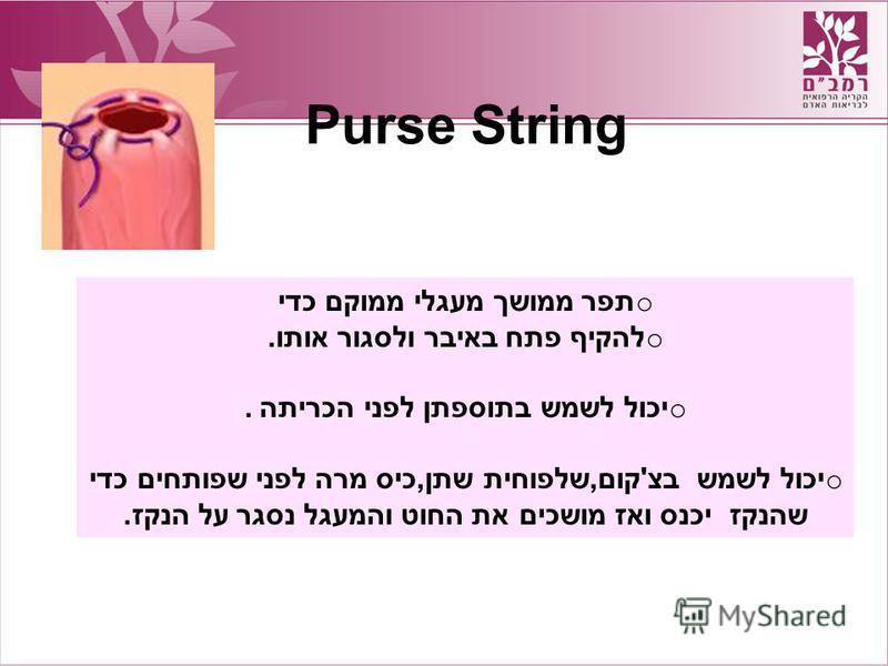 Purse String o תפר ממושך מעגלי ממוקם כדי o להקיף פתח באיבר ולסגור אותו. o יכול לשמש בתוספתן לפני הכריתה. o יכול לשמש בצ'קום,שלפוחית שתן,כיס מרה לפני שפותחים כדי שהנקז יכנס ואז מושכים את החוט והמעגל נסגר על הנקז.