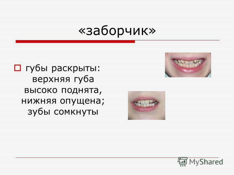 «заборчик» губы раскрыты: верхняя губа высоко поднята, нижняя опущена; зубы сомкнуты